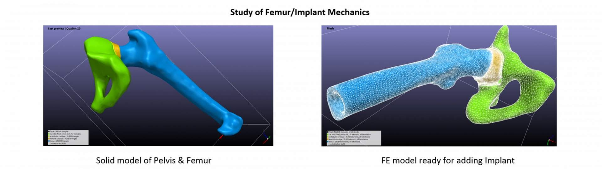 femur implant 01